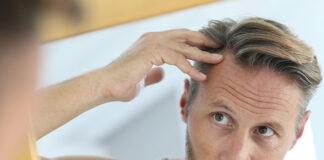 Skuteczna alternatywa dla przeszczepu włosów